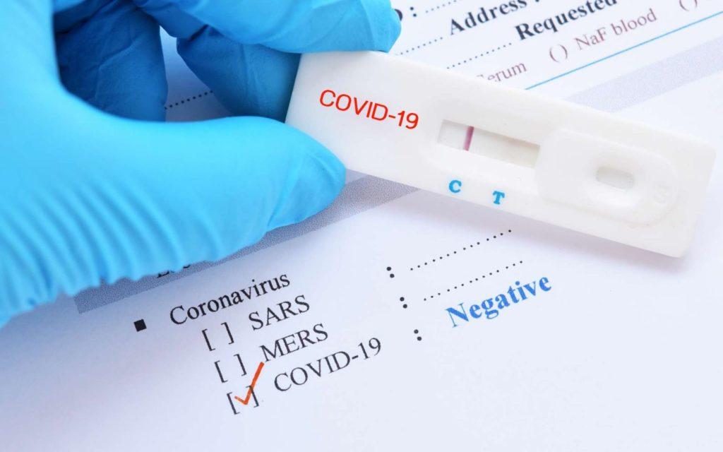 Пациентов смогут выписывать после одного отрицательного теста на COVID-19